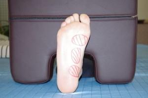足底腱膜炎の傷めやすい場所