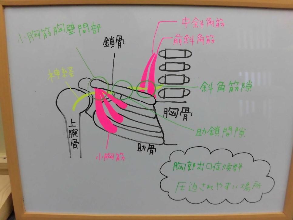 ◇胸郭出口症候群 4つのタイプの原因と治療◇