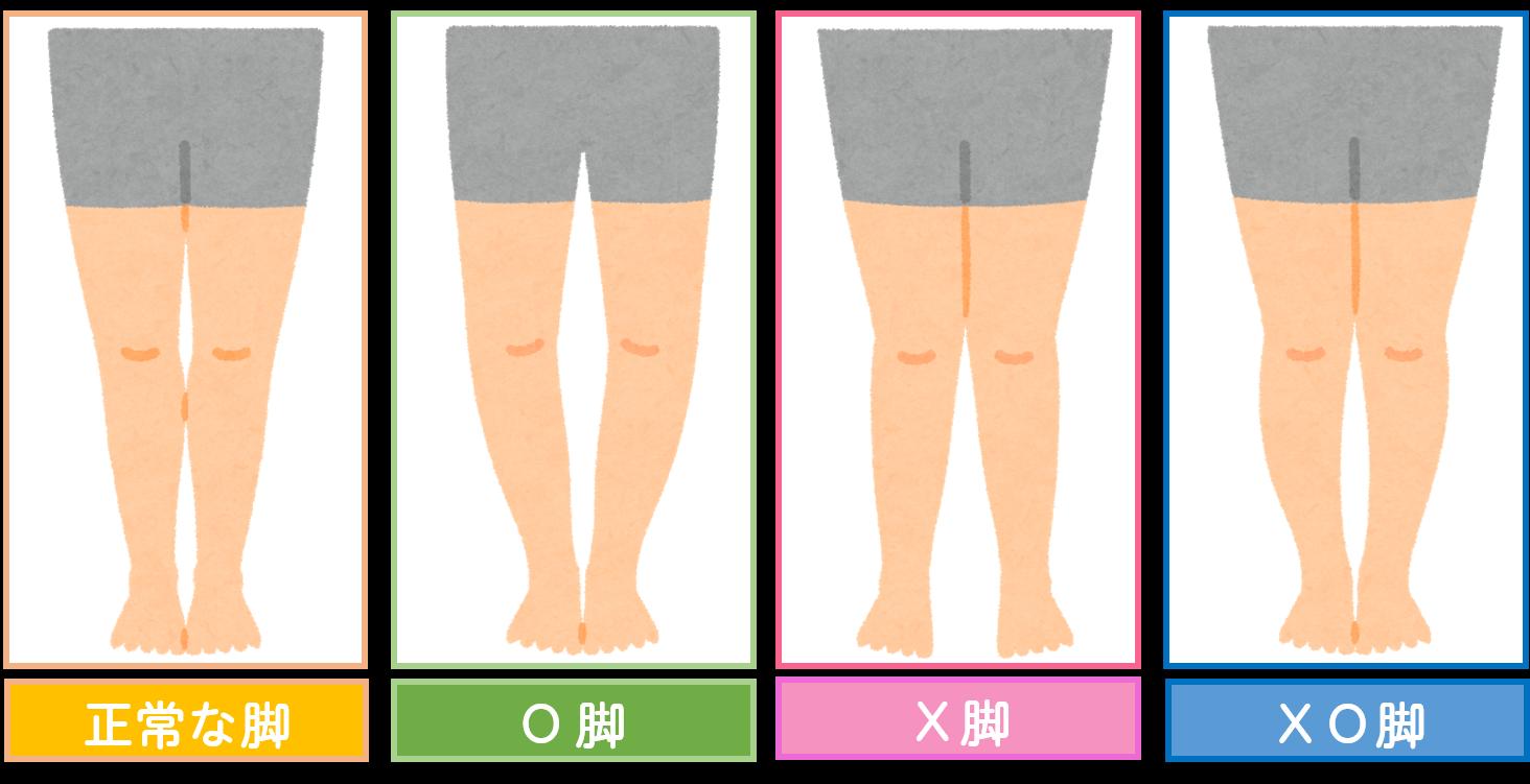原因 x 脚 【X脚を治そう】X脚・XO脚の原因と自分で出来る簡単な改善方法
