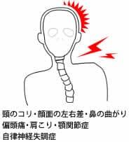 顎関節症により引き起こされる症状